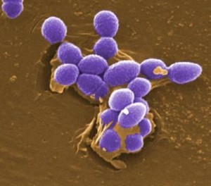 Deadly Superbugs Hitting Critical Mass in Hospitals - Heal ...
