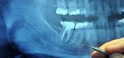 tooth cavities and heart disease