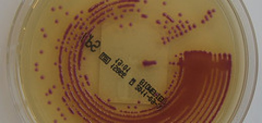 ESBL-producing E. coli and Klebsiella infections increasing
