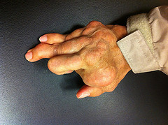arthritis is increasing throughout the US