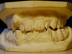 sensitive teeth ayurvedic remedies