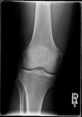 osteoarthritis and weight loss