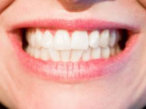 white teeth oral health